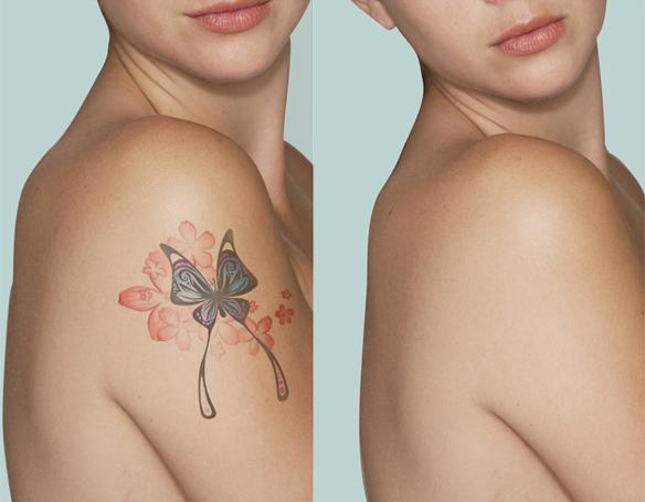 Laser-rimozione-tattoo