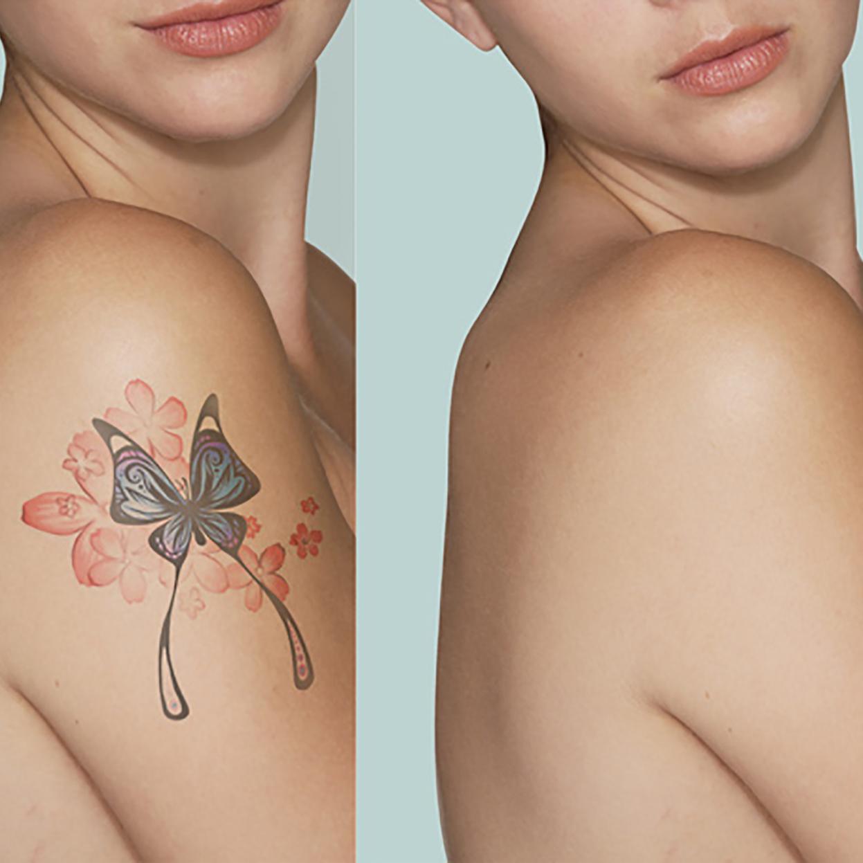 Laser-rimozione-tattoo2